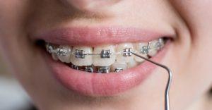 felnőtt fogszabályozás budapest